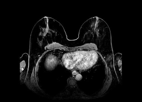 Kernspintomographie der Brust